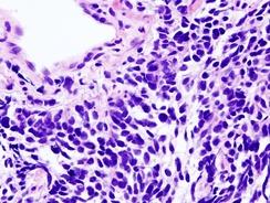 Мелкоклеточная карцинома лёгкого.