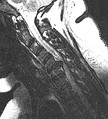 MRI scan of cervical disc herniation between fifth and sixth cervical vertebral bodies. Herniation between sixth and seventh cervical vertebral bodies is most common.