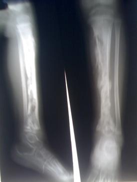 Ostermyelitis Tibia.jpg