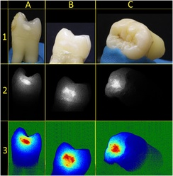 Tooth samples imaged with a non-coherent continuous light source (row 1), LSI (row 2) and pseudo-color visualization of LSI (row 3).[87]