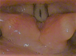 Vocal folds (speaking)