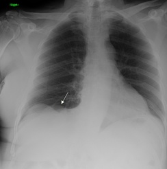 Primary pulmonary sarcoma in an asymptomatic 72-yr old male.