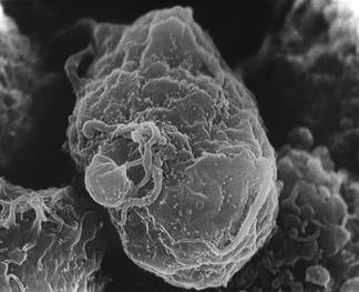 Изображение, сделанное растровым электронным микроскопом. В центре кадра заражённый T-лимфоцит. Многочисленные светлые круглые выпуклости на его поверхности— места сборки и отпочковывания вирионов вируса иммунодефицита человека[19]