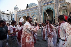 The results of self-flagellation, as part of an annual religious mourning ritual (Muharram)