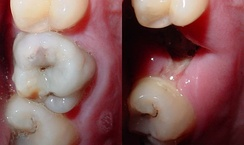 Two pictures showing a tooth with a large caries lesion, and the socket left once the tooth had been extracted