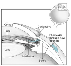 Conventional surgery to treat glaucoma makes a new opening in the trabecular meshwork, which helps fluid to leave the eye and lowers intraocular pressure.