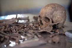 Exhumed skeletal remains of victims of the Isaaq genocide found from a mass grave site located in Berbera, Somaliland.