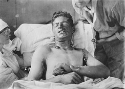 A Canadian soldier with mustard gas burns, ca. 1917–1918.
