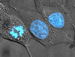 HeLa cells stained with Hoechst blue stain.