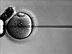 Интрацитоплазматическая инъекция сперматозоидов