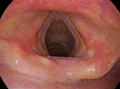 Vocal folds (open)