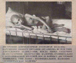 A victim of starvation in besieged Leningrad in 1941