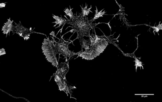 Actin filaments in a mouse cortical neuron in culture