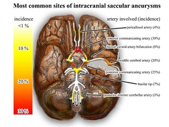 The most common sites of intracranial saccular aneurysms