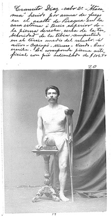 "Photo of Chilean private first class Tránsito Diaz, injured during the Landing on Pisagua. The photo belongs to the ""Álbum de inválidos de la Guerra del Pacífico"", 130 photographic records ordered by the D. Santa María government to demonstrate the pensions and orthopedic devices given to disabled war veterans.[123] 4,081 Chilean soldiers returned disabled from the war, that is 10% of the expeditionary force. By 2008, 280 women got a national pension as daughter or wife of veterans.[124]:20;30"