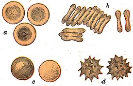 Эритроциты человека:  нормальные— двояковогнутые; нормальные, вид с ребра; в гипотоническом растворе, разбухшие (сфероциты); в гипертоническом растворе, съёжившиеся (эхиноциты)