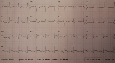 A 12-lead ECG showing a STEMI. Elevation of the ST segment can be seen in some leads.