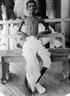 This photograph shows an emaciated Indian Army soldier who survived the Siege of Kut, part of the campaign in Mesopotamia
