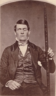 From accidents such as the one of Phineas Gage, it is known that the prefrontal cortex plays an important role in moral behavior.