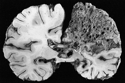 This coronal cross-section of a brain reveals a significant arteriovenous malformation that occupies much of the parietal lobe.
