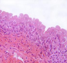 Уротелий мочевого пузыря