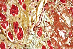 An instance of diagnosis via histopathology, this high-magnification micrograph of a section of cardiac tissue reveals advanced cardiac amyloidosis.  This sample was attained through an autopsy.