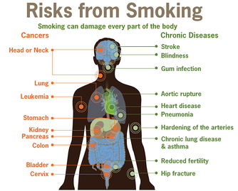 Smoking can damage many parts of the body