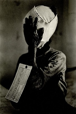 "Heavily bandaged woman with a tag attached to her arm which reads ""VNC Female"" meaning Vietnamese civilian"