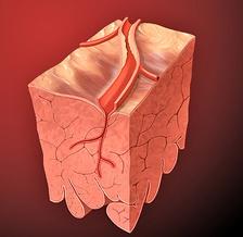 Атеросклеротическое сужение просвета коронарной артерии (схема).
