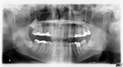 Panoramic x-ray radiography of the teeth of a 64-year-old male shows dental work performed mostly in UK/Europe in last half of 20th century