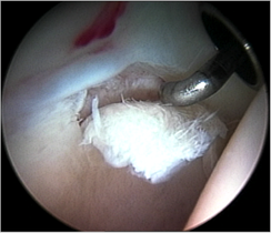 Figure 8.Cartilage delamination. A small area of acetabular cartilage has lifted from the underlying bone, being demonstrated by use of the arthroscopic probe