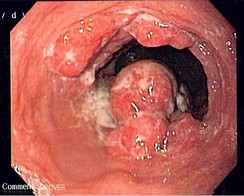 Endoscopic image of an esophageal adenocarcinoma