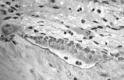 Light micrograph of decalcified cancellous bone tissue displaying osteoblasts actively synthesizing osteoid, containing two osteocytes.