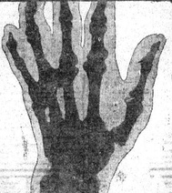 McGuire's gnarled, knotted left hand, x-rayed in 1906