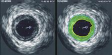 Ультразвуковая диагностика выявила сужение венечной артерии. Зона бляшки отмечена зелёным цветом.