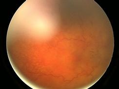 Фотография глазного дна показывает менее сильный отёк диска зрительного нерва
