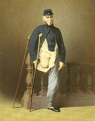Private Lewis Francis was wounded July 21, 1861, at the First Battle of Bull Run by a bayonet to the knee.