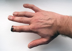 Partial amputation of index finger.
