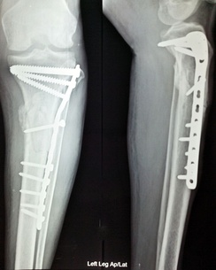 Anterior and lateral view x-rays of fractured left leg with internal fixation after surgery