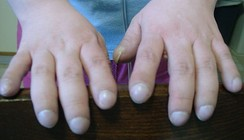 "Clubbing of fingers in a patient with Eisenmenger's syndrome; first described by Hippocrates, clubbing is also known as ""Hippocratic fingers""."