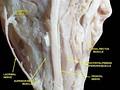 Медиальная прямая мышца, слёзная железа и нервы левого глаза. Анатомический препарат