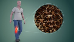 Reduced bone mineral density in Osteoporosis (R), increasing the likelihood of fractures