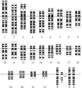 A graphical representation of the standard human karyotype, including both the male (XY) and female (XX) sex chromosomes.