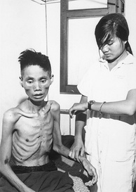 This 23-year-old man, who had defected from the Communist forces and joined the South Vietnam Government side, was recaptured by the Việt Cộng and spent a month in a Việt Cộng internment camp, 1966.