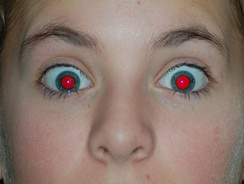 Intense red-eye effect in blue eyes with dilated pupil