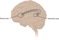 Broca's area and Wernicke's area are linked by the arcuate fasciculus.