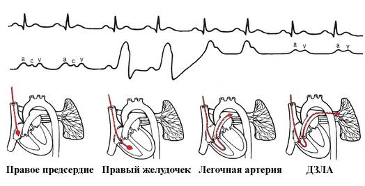 Схема установки катетера лёгочной артерии.