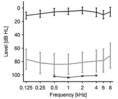 Loudness discomfort levels (LDLs): data of people with hyperacusis without hearing loss. Upper line: average hearing thresholds. Lower long line: LDLs of this group. Lower short line: LDLs of a reference group with normal hearing.[13]
