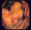 Endoscopic image of colon cancer identified in sigmoid colon on screening colonoscopy in the setting of Crohn's disease