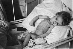 Malnourished Dutch child in The Hague